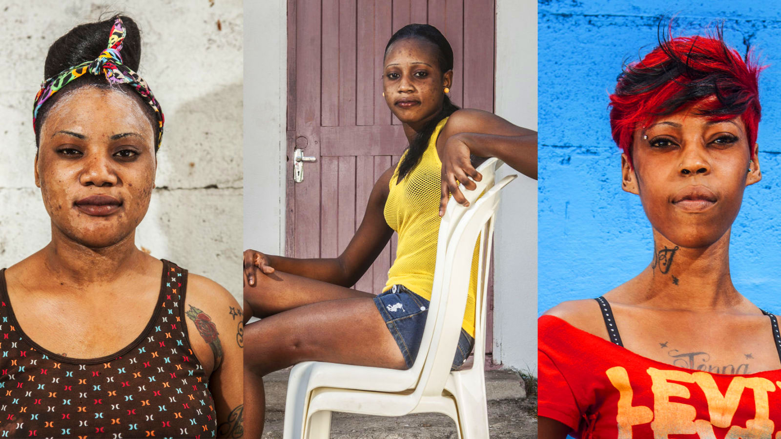 Skin bleaching in Jamaica