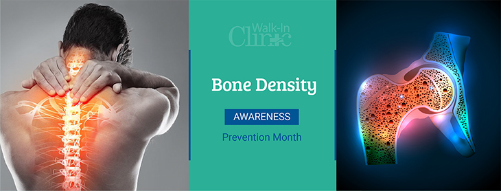 The Walk-In Clinic | Bone Density Prevention Awareness Month