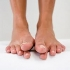 Toenail fungus is not just a cosmetic problem